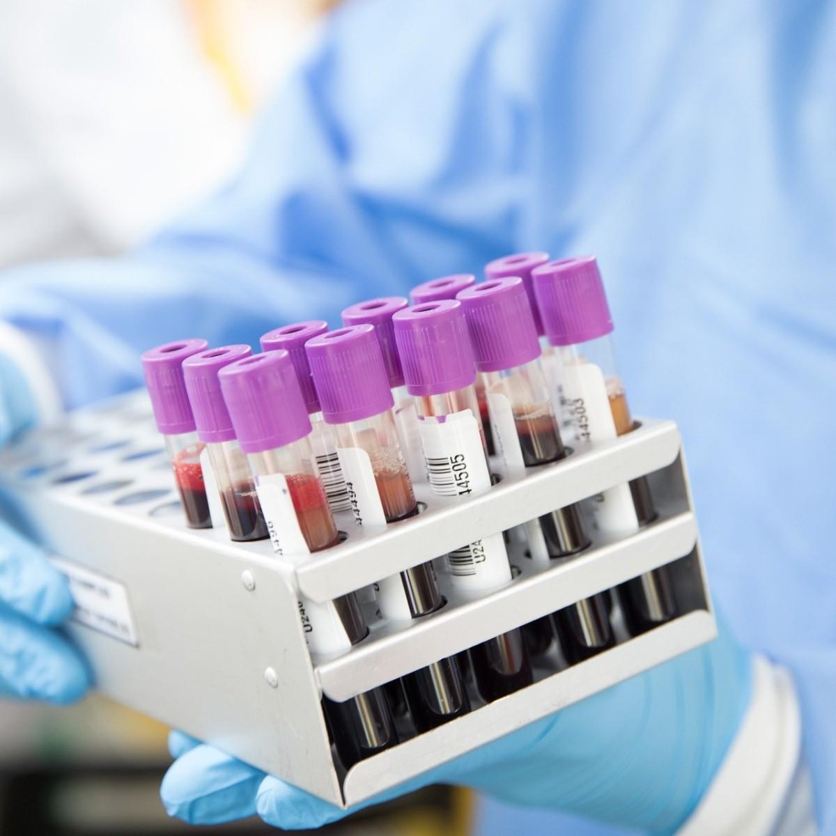 Тесты на наркотические средства